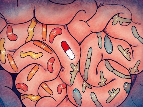 gut microbiome and Abiraterone response in prostate cancer