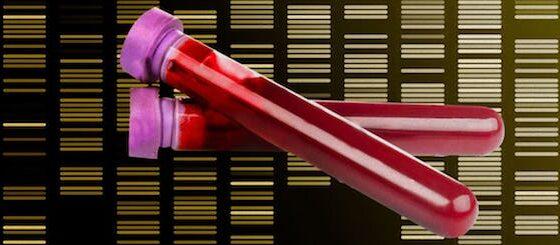 NHS cancer screening blood test