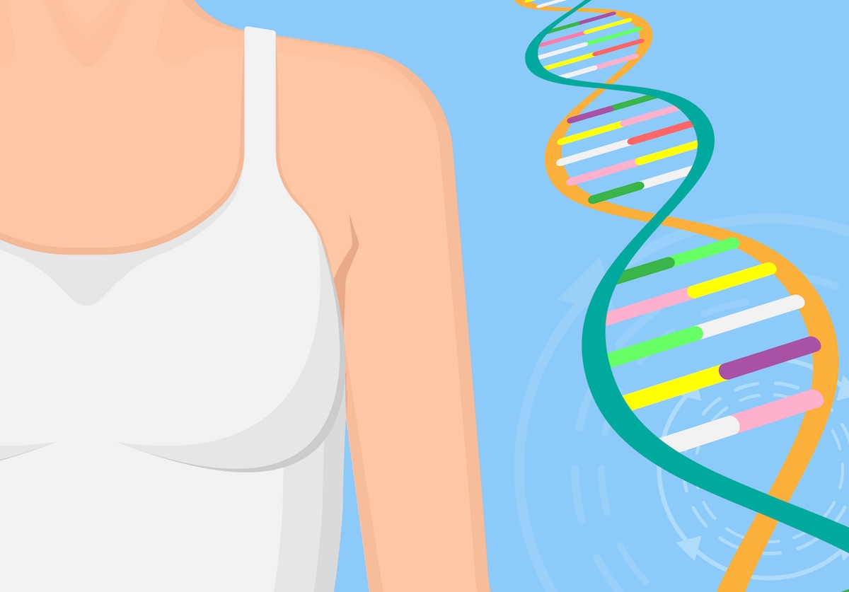 Studies provide clarity on breast cancer genes for genetic panels