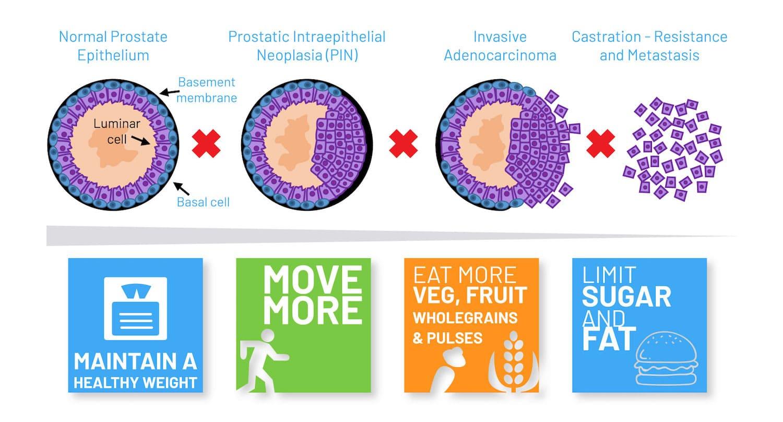 Prostate cancer: new leads for deterring progression